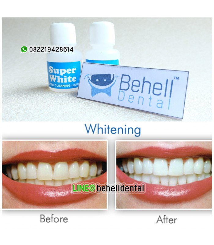 Jual Pemutih Gigi Super White Bleaching Teeth Whitening
