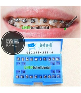 Paket Behel Permanen Damon Murah / self ligating / damond braces