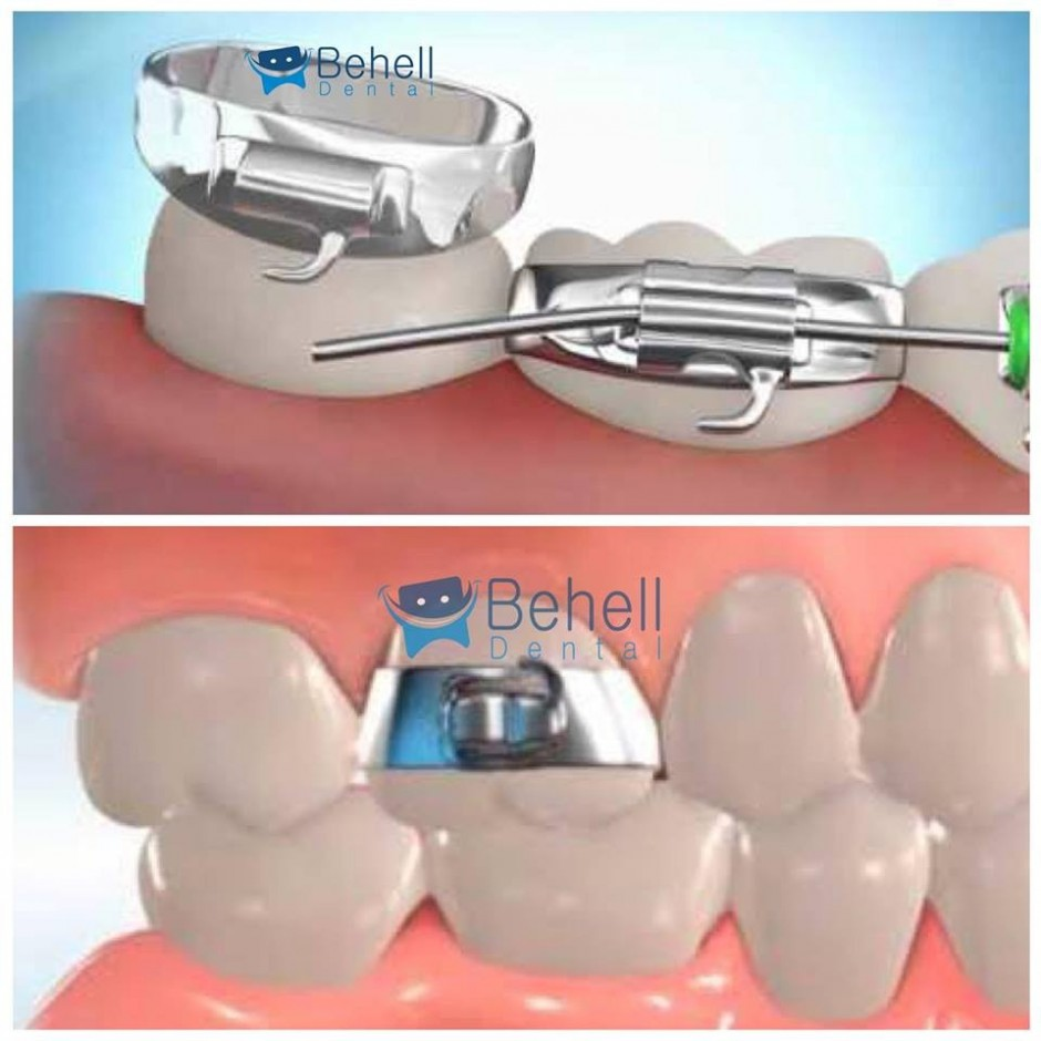 Molar Band With Buccal Tube Edgwise Protect 0.18