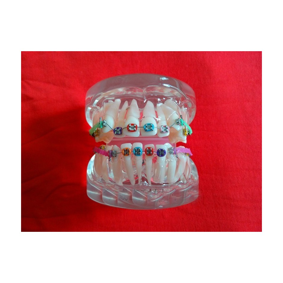 Orthodontic Study Model Transparan ( Patung Gigi )